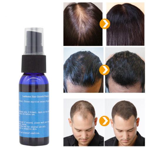 תרסיס למניעת התקרחות ועידוד גדילת שיער