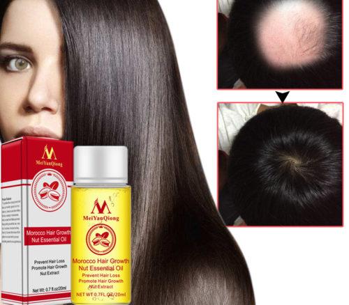 שמן טבעי לטיפול בנשירת שיער ומצמיח שיער מחדש
