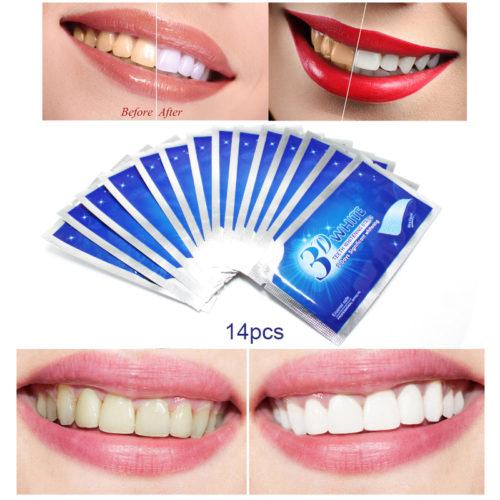 רצועות ג'ל להלבנת השיניים (סט 14 זוגות)